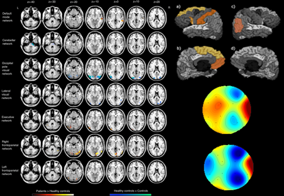 Altered resting state networks and cortical areas in Essential Tremor